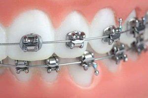 medic dentist ieftin pitesti